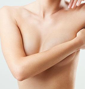 Cure de ptose mammaire