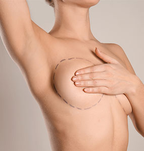 Conversion prothèse-lipomodelage